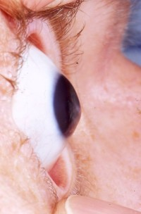 A conical bulge, caused by keratoconus.